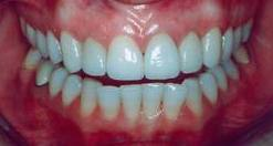 Healthy_Gums
